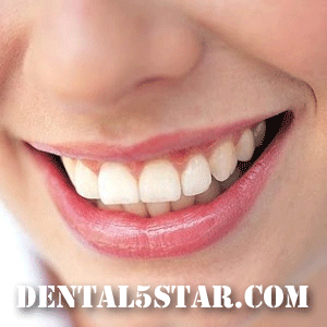 Dental Extraction Midtown Manhattan Dentist