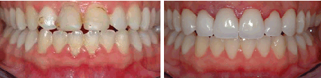 dental veneers before and after 2