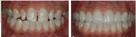 dental veneers before and after 3
