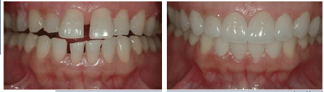dental veneers before and after 4